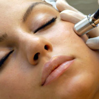 What Is the Difference Between Microdermabrasion & a Chemical Peel?