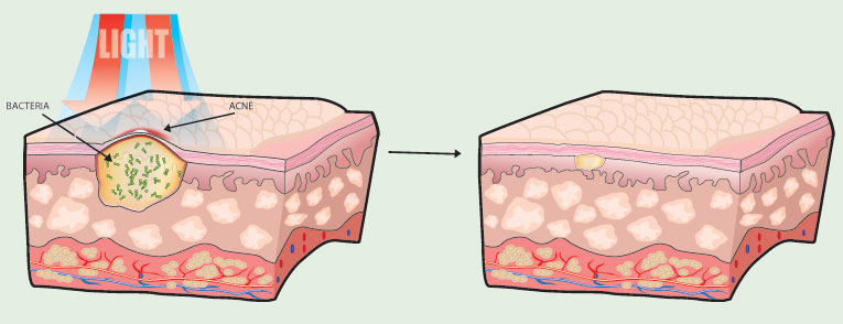 cross_section_acne