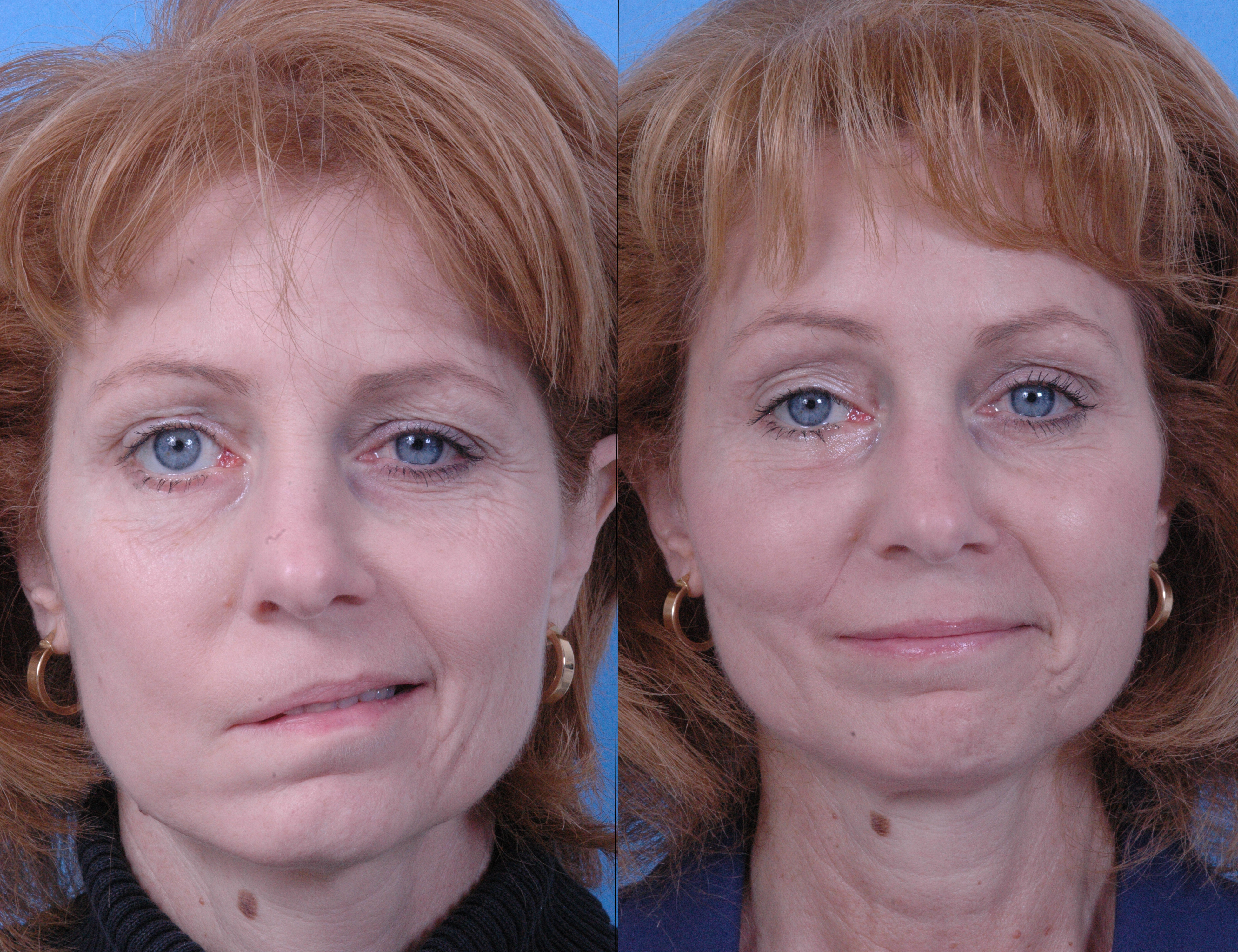 Phrase Microcurrent facial before and after have hit